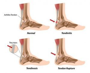 Achilles Tendonitis Treatment in Highgate, 5063