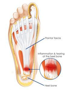 can plantar fasciitis cause ankle pain and swelling